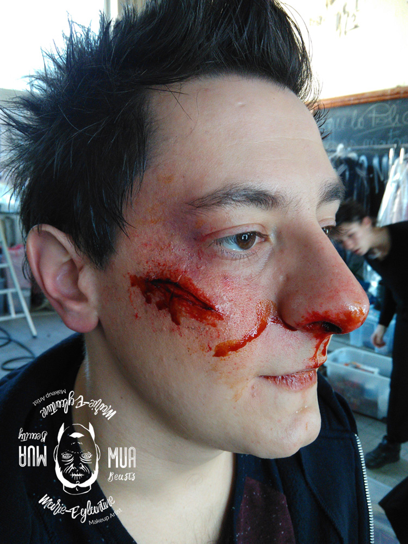 Prosaide transfert d'une blessure à la joue