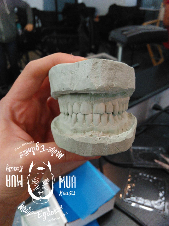 Moulage de dents et création d'un faux dentier.